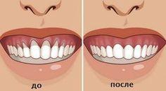 У многих людей есть проблемы с тем, что оголилась шейка или корень зуба. Это вызывает дискомфорт и сопровождается очень неприятными болезненными ощущениями и приводит к накоплению бактерий, которые разрушают зубы и вызывают воспаление десен.