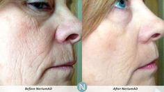 #RealResults with #Nerium!