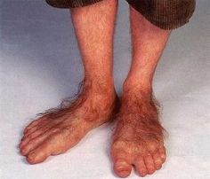 Picture of ugly feet
