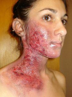 burn victim photos - Google Search Sfx Makeup, Makeup Art, Hair Makeup, Special Makeup, Special Effects Makeup, Halloween Queen, Halloween Makeup, Horror Makeup, Theatrical Makeup