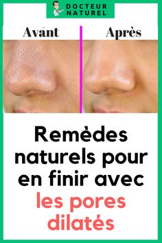 Remèdes naturels pour en finir avec les pores dilatés #pores#visage#acne#pointnoir#beauté Skin Care, Skin Care Remedies, Natural Skin, Beauty Recipe, Natural Remedies, Skincare