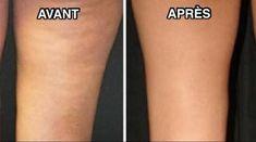 recettes de grand-mère pour lutter contre la cellulite avant et après