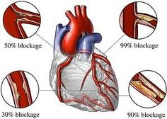 Natural Remedy For Hereditary High Cholesterol...