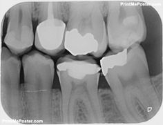 x-ray for check dental caries teeth bad condition poster Dental x-ray for check dental caries teeth bad condition posterDental x-ray for check dental caries teeth bad condition poster Dental Posters, Teeth, Mousepad, Conditioner, Check, Poster Poster, Bad, Ideas, Tooth
