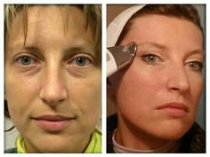 I love seeing my customers feedback and photos of their results ❤ ❤ ❤ Maya your results :) amazing  #amazingresults  #skincare  #transformation