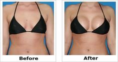 Many women are looking for a solution to increase their breasts size without surgery. Fortunately, there is a natural remedy which can enlarge your breast