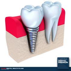 Implantes dentários, branqueamentos, coroas, tratamentos e outras ofertas por um valor base (sem que tenha que pagar mais por isso)? Soa-lhe bem? Então conheça mais sobre o nosso Cartão e eleve a sua saúde oral para um patamar de excelência. Dê um passo em frente e sorria. ----- SAIBA TUDO EM http://cartaodentalpremium.com/#comoaderir > 800 CAR TAO / 800 227 826 #SwissDentalHealthPlans #CartãoDentalPremium #CartãoDeSaúde #Clínica #Implantes #Dentista #SorriaMais