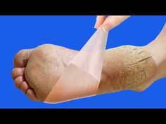 Pedicure diy dead skin shaving cream 20 ideas for 2019 Bloated Face, Foot Detox Soak, Listerine Foot Soak, Fake Freckles, Foot Peel, Blackhead Mask, Hacks Every Girl Should Know, Exfoliant, Citric Acid