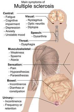 Multiple sclerosis symptoms Optic Neuritis, Multiple Sclerosis Awareness, Cervical Cancer, Signs And Symptoms, Autoimmune Disease, Stem Cells, Medical Marijuana, Human Body, Disorders