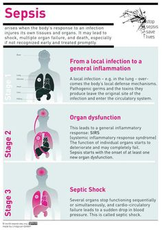 Sepsis infographic - via Carles Calaf ( Nursing School Notes, Nursing Schools, Nursing School Graduation, Medical School, Nursing Tips, Ob Nursing, Funny Nursing, Pharmacology Nursing, Nursing Assessment