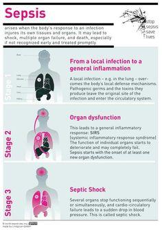 Sepsis infographic - via Carles Calaf ( Medical Surgical Nursing, Icu Nursing, Nursing Assessment, Funny Nursing, Nursing School Notes, Nursing Schools, Medical School, Critical Care Nursing, Pharmacology Nursing