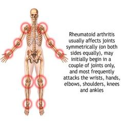 Physical Therapy For Rheumatoid Arthritis In Shoulder