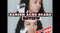 HEAL ACNE SCARS: Banish Acne Scars Review!