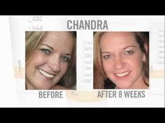 Transformative Results - Before and Afters.  www.SkincareDreamTeam.com