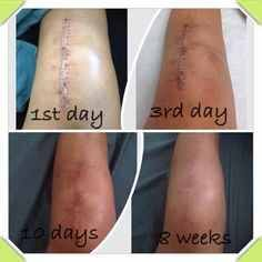Liquid gold!! It Works Defining Gel is like magic!!! I even use it on my face twice a dat for a subtle lift!!! Love that!! #beautiful #itworks #LiquidGold #DefiningGel #scar #blemishes #tighten #firm #evenskintone #minifacelift #smoothwrinkles #instagood #minimizesstretchmatks #instapic #love #picoftheday #eliminatescellulite #futbul #newmommies #loseweight #beskinny