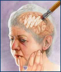 """Alzheimers - Taking the Elderly"" by Mica Duran, Class of 2000 Watercolor Orville Parkes Student Best of Show & Award of Excellence for Student Editorial Illustration Association of Medical Illustrators 1999."
