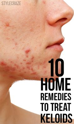 Keloids are nothing but enlarged scars that are caused due to the anomalous growth of fibrous tissues. Here are some home remedies for keloids that will help reduce and finally eliminate it.