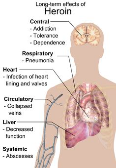 heroin withdrawal - Google Search