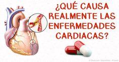 Las estatinas realmente no ayudan a reducir el riesgo de enfermedad cardiaca, de hecho, este tipo de medicamentos aumenta su riesgo de problemas cardiacos. http://articulos.mercola.com/sitios/articulos/archivo/2016/01/03/el-mundo-de-las-estatinas-2.aspx