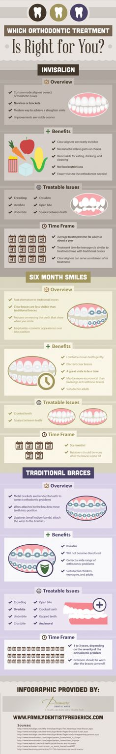 Which Orthodontic Treatment Is Right for You? – Infographic on http://www.bestinfographic.co.uk