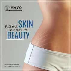 Now bid GOODBYE to those scars & stretch marks! Embrace your new body by giving it a fresh smooth cover At MayoHairTransplant. Face Care, Body Care, Skin Care, Scar Removal Surgery, Hair Clinic, Going Bald, Hair Transplant, Phase 2