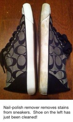 Good to know. How to clean your sneakers. Check out some more awesome stuff here http://omgwhatsthat.com