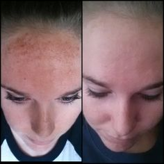 Before and after one week of our photofacials! Incredible difference just after one treatment! www.michelehunteraesthetics.com