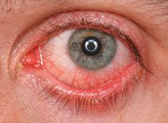 Conjunctivitis Treatment Conjunctivitis, also known as pink eye, is a very common infection of the eye that is highly contagious, . The post Conjunctivitis (Pink Eye) Home Remedies & Treatments appeared first on The Kitchen. Pink Eye Home Remedies, Eye Stye Remedies, Natural Remedies, Eye Infection Treatment, Red Eyes, Pink Eyes, Ayurveda, Treating Pink Eye, Immune System