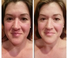 before and after out Peel, OMG I am so super excited for these results.. They are amazing. :)