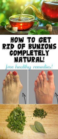 HOW TO GET RID OF BUNIONS COMPLETELY NATURAL! Health Tips, Health And Wellness, Health Care, Health And Beauty, Health Fitness, Gout Remedies, Health Remedies, Natural Remedies, Get Rid Of Bunions