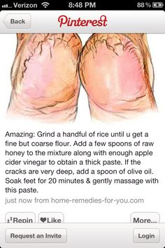Haven't tried this personally, but it just may be one fantastic  idea! Feet remedy for dry cracked heels