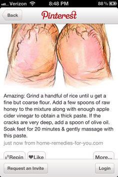 dry feet remedies