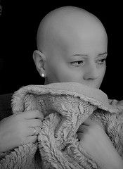 A beautiful Woman (CWhatPhotos) Tags: woman never love beautiful women breast heart you head young mother cancer bald sharon mum thoughts will always forever secondary lovely miss loved shaven shaz forget chemotherapy chemo shazzy radiotherapy
