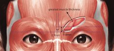 Figure 5.6 from The Art and Science of Filler Injection: Based on Clinical Anatomy and the Pinch Technique   Semantic Scholar Cosmetic Fillers, Facial Fillers, Filler Injection, Surgery Journal, Muscles Of The Face, Hyaluronic Acid Fillers, Plastic And Reconstructive Surgery, Gross Anatomy, Facial Aesthetics