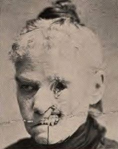 Dead tissue (sloughing) from Syphilis. Syphilis patients were also placed in asylums as their brains deteriorated leading to insanity. Scary, Creepy, Human Oddities, Thing 1, Medical History, Medical Conditions, Macabre, Weird, Pictures