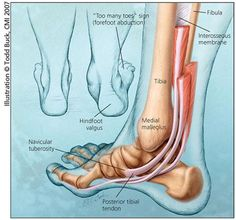 Anatomy Reference Adult Acquired Flatfoot- Posterior Tibial Tendon Insufficiency (Adult Acquired Flatfoot): An Overview.edu - Hospital for Special Surgery, New York Ankle Anatomy, Foot Anatomy, Human Body Anatomy, Human Anatomy And Physiology, Muscle Anatomy, Tendinitis, Medical Anatomy, Shin Splints, Anatomy Reference