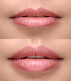 Just in time for the Holidays! New Juvederm Volbella for lip plumping and diminishing the fine lines above the lip. Volbella is recommended for contouring, symmetry and diminishing smokers lines caused by aging. lovely_lips_volbella_before_after.jpg