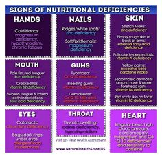 Signs of some Nutritional Deficiencies: Visit us- Take the Health Assessment and see areas your body may need help click link: http://www.naturalhealthstore.us/shop/