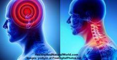Neck Pain and Headaches – Could Your Neck Pain Cause a Headache?