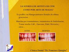 """Elimine esas manchas de sus dientes y obtenga esa """"Sonrisa de Artista de Cine"""" que siempre ha querido tener! Llámenos a  Clínica Dental """"Dr. Francisco Quetglas"""" al Teléfono 2252-8640."""