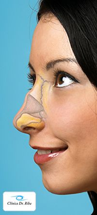 La Rinoplastia es una intervención que consigue armonizar las facciones del rostro mediante la corrección de la estructura ósea y cartilaginosa de la nariz.   http://clinicariba.com/tratamientos-faciales/rinoplastia/