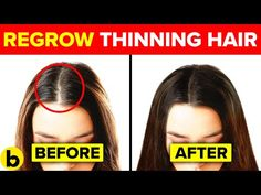 13 Ways To Regrow Your Hair Naturally And Forget About Bald Spots