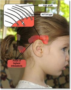 The spots marked in RED are where lice prefer