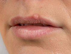 Herpes labial - Remedios caseros | Remedios naturales | Plantas medicinales