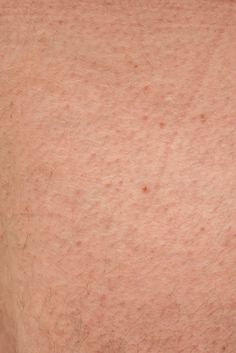 how to get rid of deeply imbedded pimples