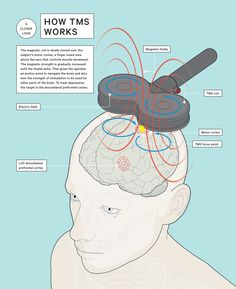 How transcranial magnetic stimulation (TMS) works