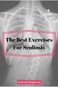 Hey guys! As I stated in my previous post, I want to give you some ideas for exercises if you have/had scoliosis. Maybe you have scolios...