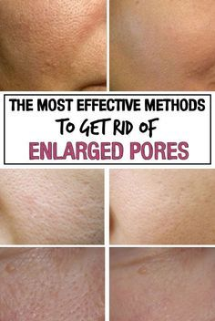 The Most Effective Methods to Get Rid of Enlarged Pores Here's what you must do if you want to get rid of the unsightly problem of dilated pores for good. Get Rid Of Pores, Minimize Pores, How To Reduce Pores, Make Pores Smaller, Dilated Pores, Reduce Pore Size, Skin Shine, Shrink Pores, Unclog Pores