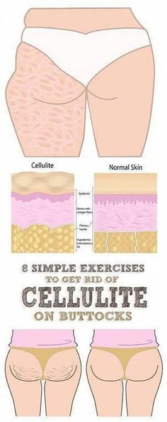 Cellulite is actually fat deposits just beneath the skin. It appears as lumps or dimples, usually near the buttocks and upper thighs, and is most common in women. Building muscle can make cellulite harder . Thigh Cellulite, Causes Of Cellulite, Cellulite Scrub, Cellulite Exercises, Cellulite Cream, Cellulite Remedies, Reduce Cellulite, Coconut Oil Cellulite, Normal Skin