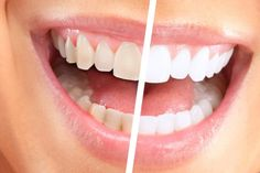 Top Oral Health Advice To Keep Your Teeth Healthy. The smile on your face is what people first notice about you, so caring for your teeth is very important. Unluckily, picking the best dental care tips migh Teeth Whitening That Works, Teeth Whitening Remedies, Teeth Whitening System, Natural Teeth Whitening, Whitening Kit, Rose Dental, Baking Soda And Lemon, Dental Crowns, Recipes